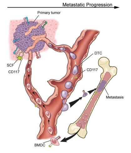 Circulating Cells in Bone Metastasis
